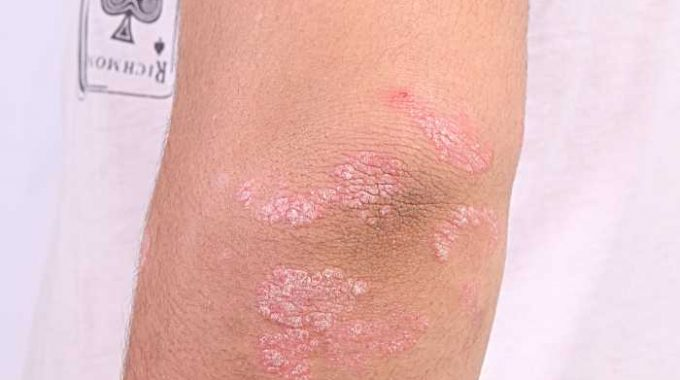 10 Things one must be Aware of Psoriasis