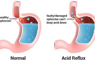 Symptoms, Natural Treatment and Diet for Acid Reflux